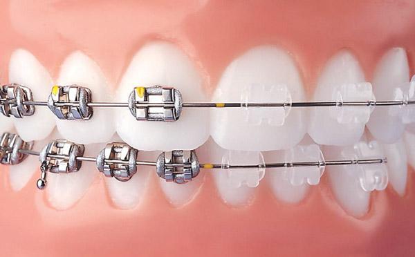niềng-răng-tẩm-mỹ-bằng-mắc-cài-kim-loại-và-trong-suốt