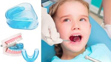 Hàm trainer cho trẻ em và người lớn, dụng cụ niềng răng bằng silicon tại nhà